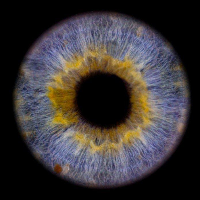aufnahme einer iris mit farbenspraenkel
